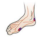 diabetes voeten